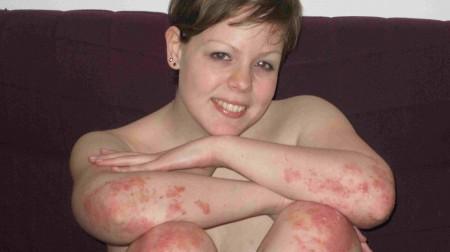 Симптомы псориаза локализуются на локтях, коленях, волосистой части головы
