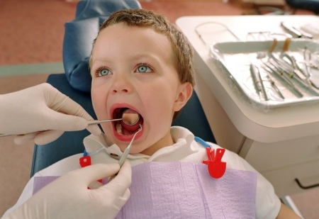 Стоматит у детей может также проявляться в качестве заболевания дёсен