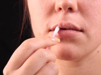 Некоторые люди используют «бабушкины» рецепты: смазывают пузырьки ушной серой, спиртом или зубной пастой