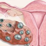 Поликистоз часто возникает на фоне гормональных нарушений