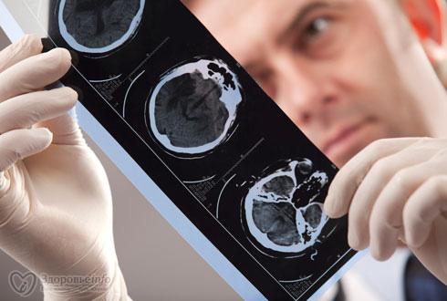490x330_stroke_diagnos