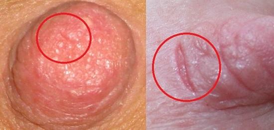 Трещины на сосках у кормящих женщин